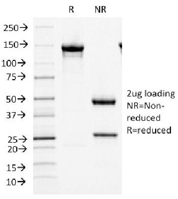 Fig. 3: SDS-PAGE Analysis Purified MCM7 Mouse Monoclonal Antibody (MCM7/1466). Confirmation of Integrity and Purity of Antibody.