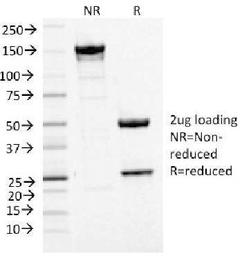Fig. 2: SDS-PAGE Analysis Purified MCM7 Mouse Monoclonal Antibody (MCM7/1468). Confirmation of Integrity and Purity of Antibody.