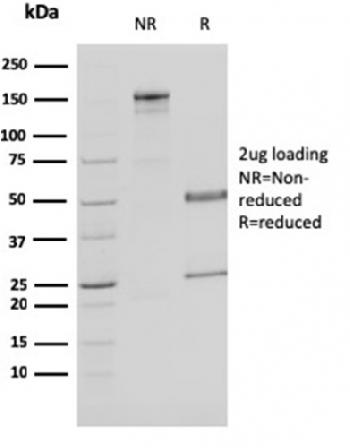 Fig. 1: SDS-PAGE Analysis Purified MDH1 Mouse Monoclonal Antibody (CPTC-MDH1-1). Confirmation of Purity and Integrity of Antibody.