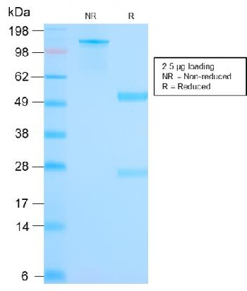 Fig. 4: SDS-PAGE Analyis Purified Mammaglobin Recombinant Rabbit Monoclonal Ab (MGB1/2682R). Confirmation of Purity and Integrity of Antibody.