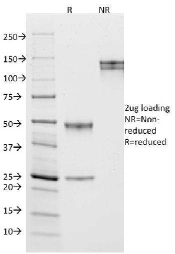 Fig. 6: SDS-PAGE Analysis Purified CD10 Mouse Monoclonal Antibody (MME/1870). Confirmation of Purity and Integrity of Antibody.