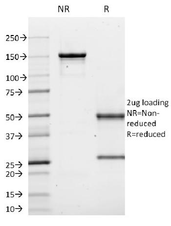 Fig. 1: SDS-PAGE Analysis Purified CD10 Mouse Monoclonal Antibody (MME/1620). Confirmation of Purity and Integrity of Antibody.