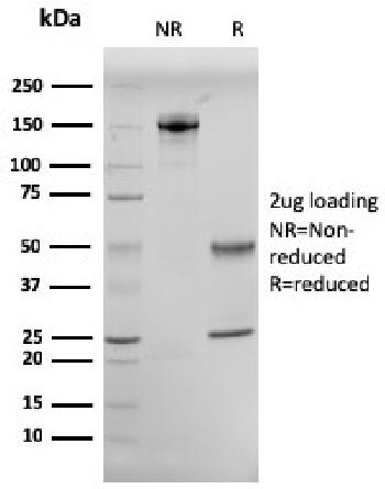 Fig. 3: SDS-PAGE Analysis Purified CD10 Mouse Monoclonal Antibody (MME/2579). Confirmation of Integrity and Purity of Antibody.