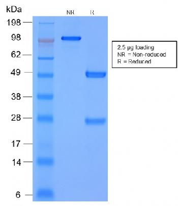 Fig. 2: SDS-PAGE Analysis Purified MMP3 Mouse Recombinant Monoclonal Antibody (rMMP3/1730). Confirmation of Purity and Integrity of Antibody.