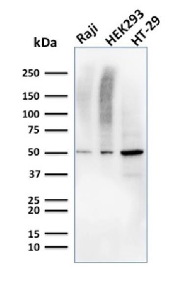 Anti-MMP3 (Marker of Metastasis and Rheumatoid Arthritis) Monoclonal Antibody(Clone: MMP3/2655)