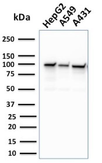 Anti-MSH2 (DNA Mismatch Repair Marker) Monoclonal Antibody(Clone: MSH2/2622)