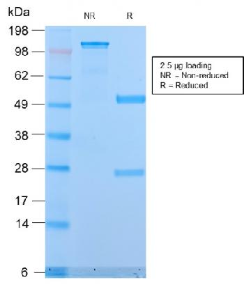 Fig. 3: SDS-PAGE Analysis Purified MUC1 Rabbit Recombinant Monoclonal Antibody (MUC1/2818R). Confirmation of Purity and Integrity of Antibody.