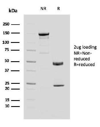 Fig. 4: SDS-PAGE Analysis Purified MUC4 Mouse Monoclonal Antibody (MUC4/3084). Confirmation of Purity and Integrity of Antibody