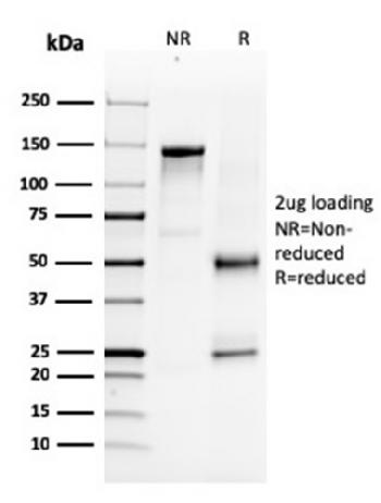 Fig. 3: SDS-PAGE Analysis Purified NKX3.1-Monospecific Mouse Monoclonal Antibody (NKX3.1/3347). Confirmation of Purity and Integrity of Antibody.