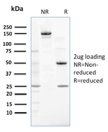 Fig. 3: SDS-PAGE Analysis Purified NME2 / nm23-H2 Mouse Monoclonal Antibody (CPTC-NME2-2). Confirmation of Purity and Integrity of Antibody.