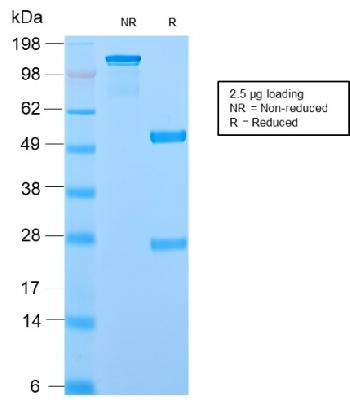 Fig. 2: SDS-PAGE Analysis Purified ODC1 Rabbit Recombinant Monoclonal Ab (ODC1/2878R). Confirmation of Purity and Integrity of Antibody.