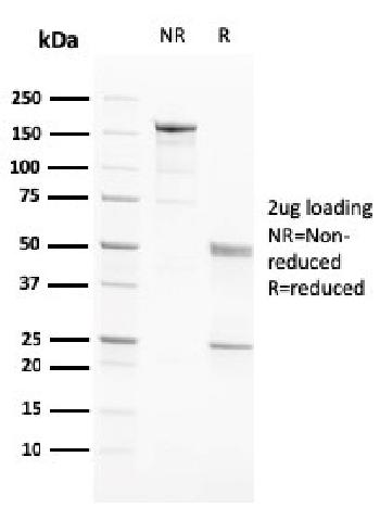 Anti-PAPP-A / Pappalysin-1 (Marker of Atherosclerosis and Aneuploid Fetus) Monoclonal Antibody(Clone: PAPPA/2717)