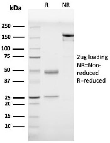 Fig. 3: SDS-PAGE Analysis Purified Prohibitin Mouse Monoclonal Antibody (PHB/3230). Confirmation of Purity and Integrity of Antibody.