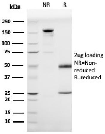 Fig. 3: SDS-PAGE Analysis Purified Prohibitin Mouse Monoclonal Antibody (PHB/3225). Confirmation of Purity and Integrity of Antibody.