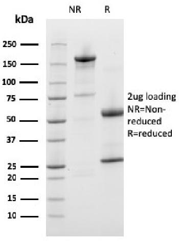 Fig. 3: SDS-PAGE Analysis Purified Prohibitin Mouse Monoclonal Antibody (PHB/3226). Confirmation of Purity and Integrity of Antibody.