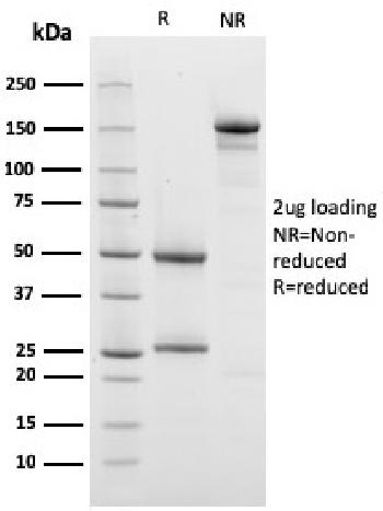 Fig. 3: SDS-PAGE Analysis Purified Prohibitin Mouse Monoclonal Antibody (PHB/3228). Confirmation of Purity and Integrity of Antibody.