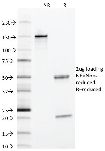 Fig. 3: SDS-PAGE Analysis Purified Alpha-1-Antitrypsin Mouse Monoclonal Antibody (AAT/1378). Confirmation of Integrity and Purity of Antibody