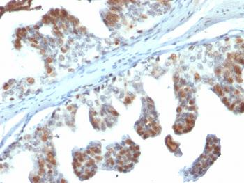 Fig. 1: Formalin-fixed, paraffin-embedded human Prostate Carcinoma stained with PTEN Mouse Monoclonal Antibody (PTEN/2110).