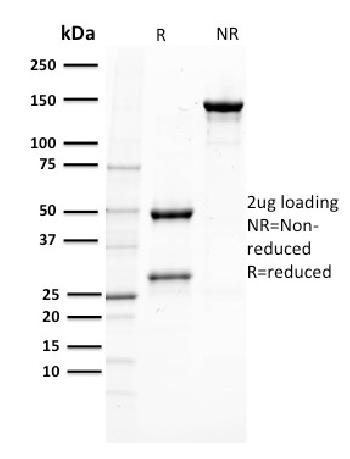 Fig. 3: SDS-PAGE Analysis Purified PTEN Mouse Monoclonal Antibody (PTEN/2110). Confirmation of Purity and Integrity of Antibody.