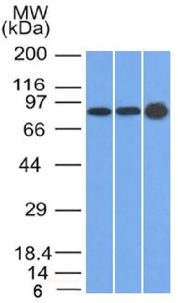 Fig. 1: Western Blot of U87, HeLa and A431 cell lysates using Plakophilin-1 Mouse Monoclonal Antibody (10B2)