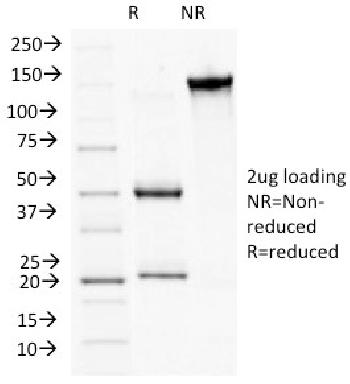 Fig. 2: SDS-PAGE Analysis Purified CD56 Monoclonal Antibody (NCAM1/784). Confirmation of Integrity and Purity of Antibody