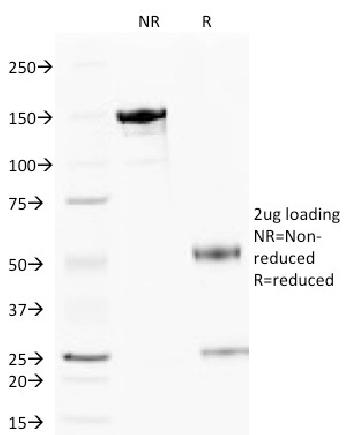 Fig. 1: SDS-PAGE Analysis Purified Cytochrome C Mouse Monoclonal Antibody (6H2.B4). Confirmation of Integrity and Purity of Antibody.