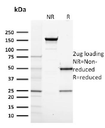 Fig. 2: SDS-PAGE Analysis Purified RNA Poll II Mouse Monoclonal Antibody (CTD4H8). Confirmation of Purity and Integrity of Antibody.
