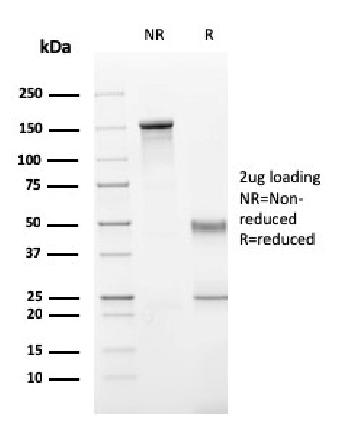 Fig. 2: SDS-PAGE Analysis Purified Perforin-1 Monospecific Mouse Monoclonal Antibody (PRF1/2470). Confirmation of Integrity and Purity of Antibody.