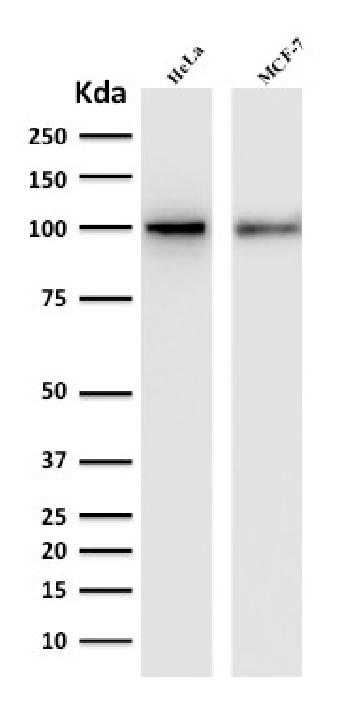 Fig. 1: Western Blot Analysis of human HeLa and MCF-7 cell lysate with ENAH / MENA Mouse Monoclonal Antibody (ENAH/1988).