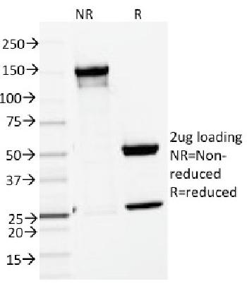 Fig. 2: SDS-PAGE Analysis Purified ENAH / MENA Mouse Monoclonal Antibody (ENAH/1988). Confirmation of Purity and Integrity of Antibody.