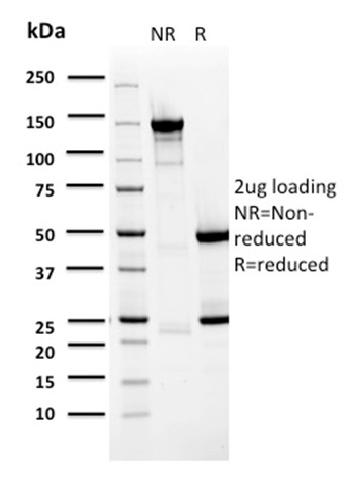 Fig. 3: SDS-PAGE Analysis Purified BARX1 Mouse Monoclonal Antibody (BARX1/2759). Confirmation of Purity and Integrity of Antibody