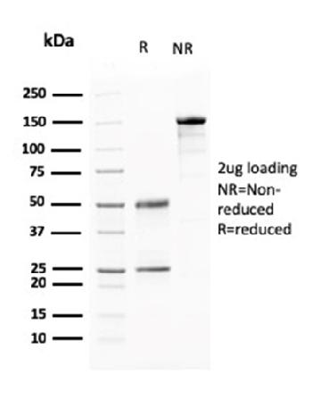 Fig. 2: SDS-PAGE Analysis Purified AKT1 Mouse Monoclonal Antibody (AKT1/2784). Confirmation of Purity and Integrity of Antibody.