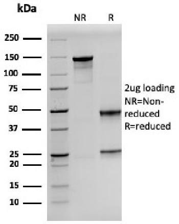 Fig. 2: SDS-PAGE Analysis Purified Prolactin Mouse Monoclonal Antibody (PRL/2641).Confirmation of Purity and Integrity of Antibody.
