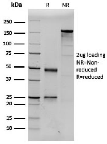 Fig. 2: SDS-PAGE Analysis Purified Prolactin Mouse Monoclonal Antibody (PRL/2643). Confirmation of Purity and Integrity of Antibody.