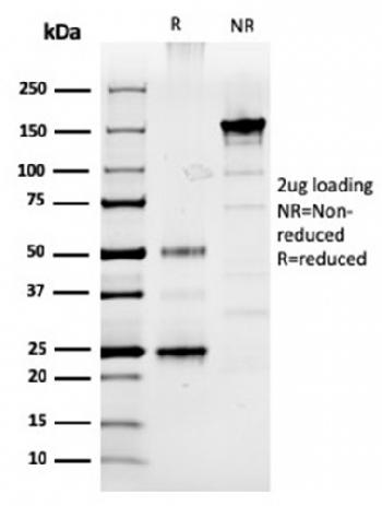 Fig. 2: SDS-PAGE Analysis Purified Prolactin Mouse Monoclonal Antibody (PRL/2910). Confirmation of Purity and Integrity of Antibody.