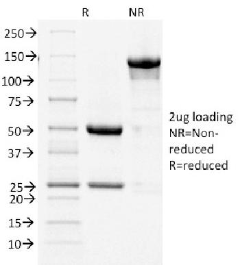 Fig. 1: SDS-PAGE Analysis Purified COX-2 Mouse Monoclonal Antibody (COX2/1941). Confirmation of Integrity and Purity of Antibody.