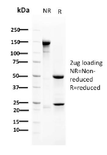 Anti-RAD51 (Prognostic and Response to Chemotherapy Marker) Monoclonal Antibody(Clone: RAD51/2702)