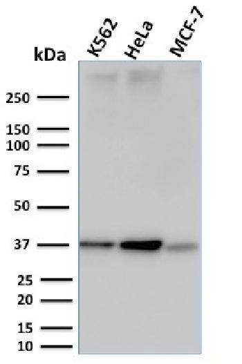Fig. 1: Western Blot Analysis of K562, HeLa and MCF-7 cell lysates using RAD51 Mouse Monoclonal Antibody (RAD51/2753).