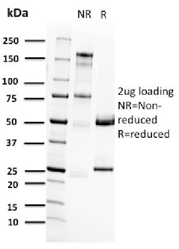 Fig. 1: SDS-PAGE Analysis Purified RET Mouse Monoclonal Antibody (RET/2662). Confirmation of Purity and Integrity of Antibody.