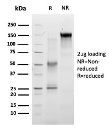 Fig. 1: SDS-PAGE Analysis of Purified RET Mouse Monoclonal Antibody (RET/2663). Confirmation of Purity and Integrity of Antibody.