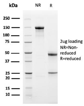 Fig. 3: SDS-PAGE Analysis Purified Bcl-x Mouse Monoclonal Antibody (BCL2L1/2406). Confirmation of Purity and Integrity of Antibody.