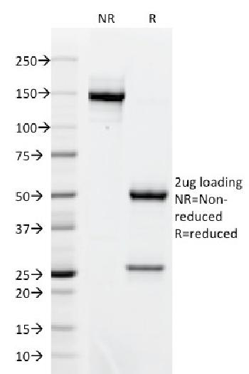 Fig. 2: SDS-PAGE Analysis Purified BCL-6 Mouse Monoclonal Antibody (BCL6/1718). Confirmation of Integrity and Purity of Antibody.