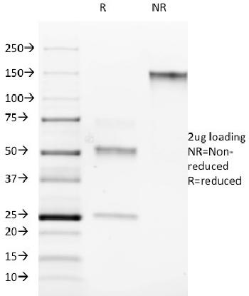 Fig. 1: SDS-PAGE Analysis Purified ROR-gamma / RORC Mouse Monoclonal Antibody (RORC/2942). Confirmation of Purity and Integrity of Antibody.