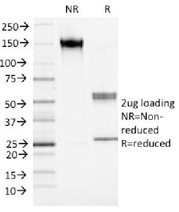 Fig. 3: SDS-PAGE Analysis Purified S100A4 Mouse Monoclonal Antibody (S100A4/1482). Confirmation of Integrity and Purity of Antibody.