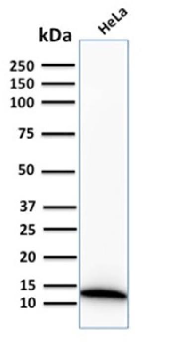 Fig. 3: Western Blot Analysis of human HeLa cell lysate using S100A4 Recombinant Rabbit Monoclonal Antibody (S100A4/2750R).