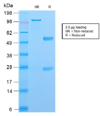 Fig. 5: SDS-PAGE Analysis Purified S100A4Recombinant Rabbit Monoclonal Antibody (S100A4/2750R). Confirmation of Purity and Integrity of Antibody.