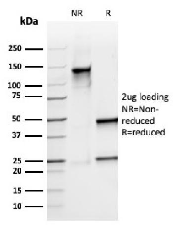 Fig. 3: SDS-PAGE Analysis Purified S100A9 Recombinant Mouse Monoclonal Antibody (rMAC3781). Confirmation of Integrity and Purity of Antibody