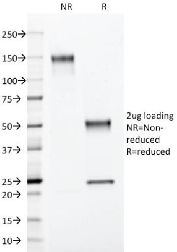 Fig. 5: SDS-PAGE Analysis Purified S100B Mouse Monoclonal Antibody (4C4.9). Confirmation of Integrity and Purity of Antibody