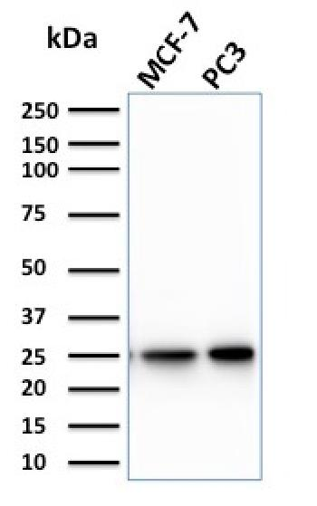Fig. 1: Western Blot Analysis of MCF-7, PC3 cell lysate using CHP2 Mouse Monoclonal Antibody (CPTC-CHP2-1).