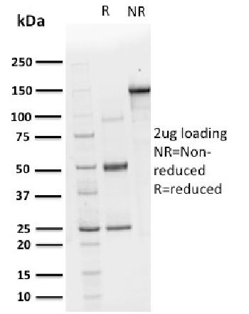 Fig. 3: SDS-PAGE Analysis Purified CHP2 Mouse Monoclonal Antibody (CPTC-CHP2-1). Confirmation of Purity and Integrity of Antibody.
